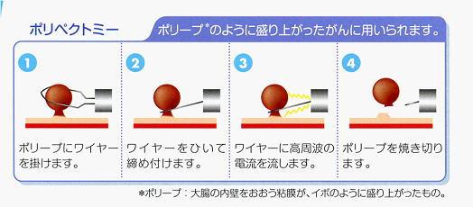 image_naishikyou01